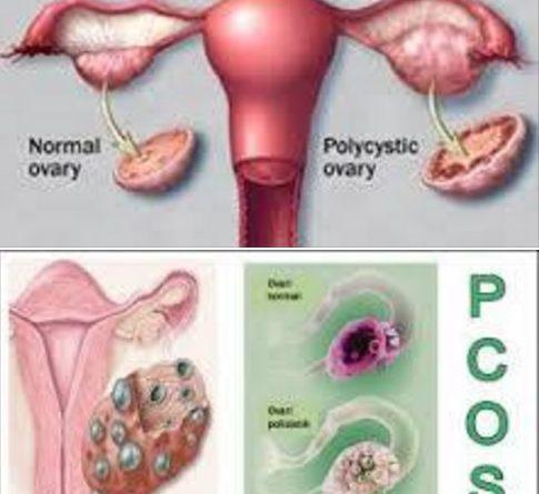 PCOS Pada Wanita dan Terapi Bekam