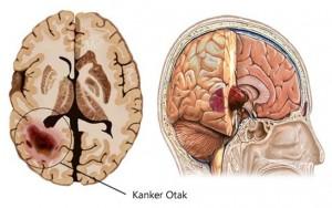 kanker-otak-1
