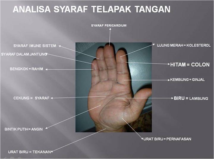 analisa syaraf tangan