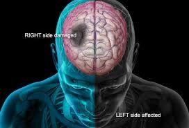 stroke kepala