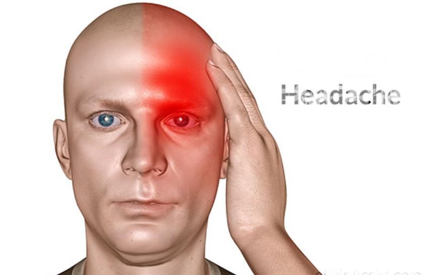 Sakit Kepala Secara Alami